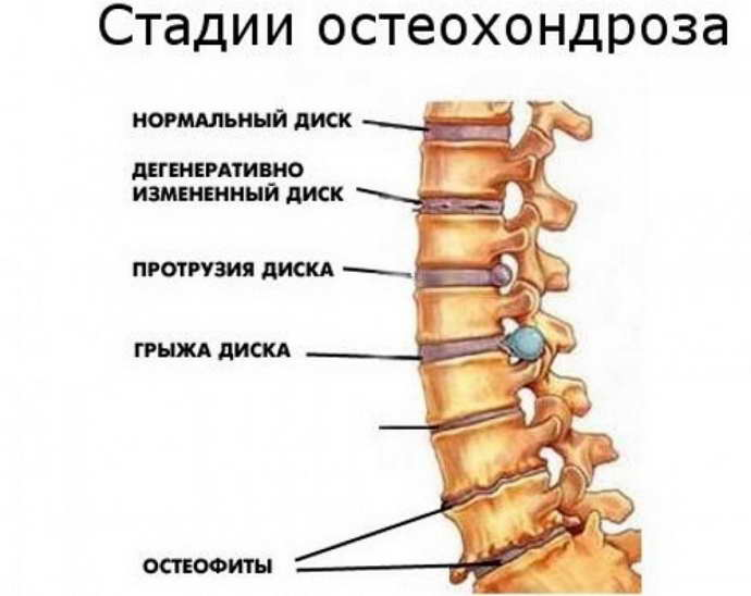 На какой стадии остеохондроза можно бегать