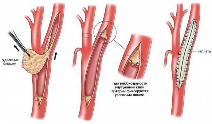 сужение кровеносных сосудов