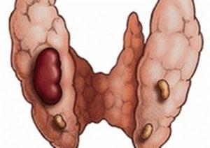 Фолликулярный тип аденомы