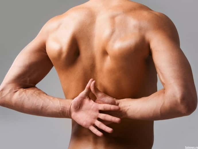 Как лечится невралгия спины