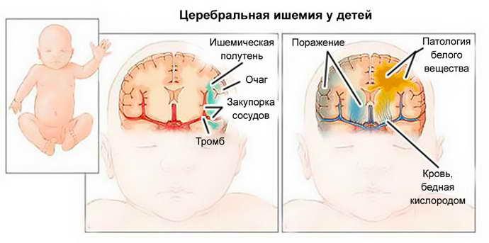 Причины эпилепсии у грудничков