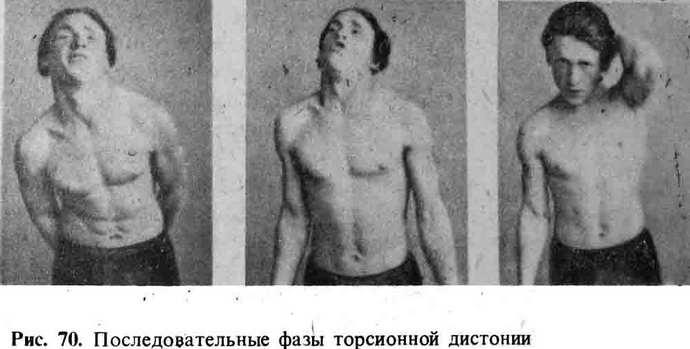 что такое торсионная дистония