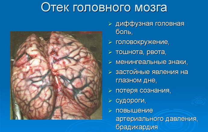 Существует ряд факторов, из-за которых образуется отек мозга