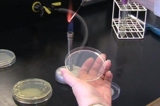 Бактериоскопический метод исследования анализов