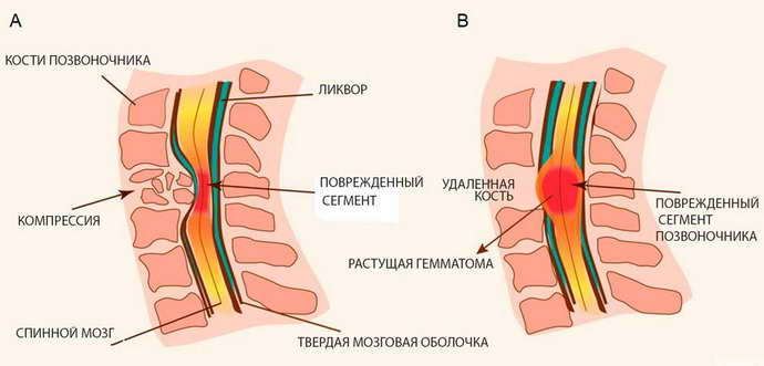Для чего нужен массаж при болезнях спины