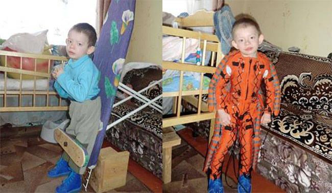 Симптомы синдрома Рассела-Сильвера фото детей