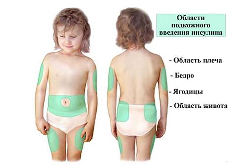 Куда делать укол инсулина у детей