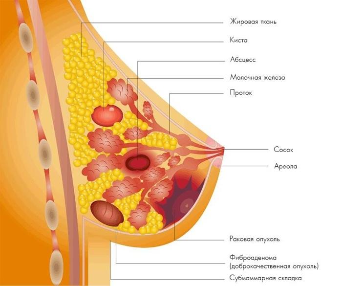 Очаговое образование молочной железы