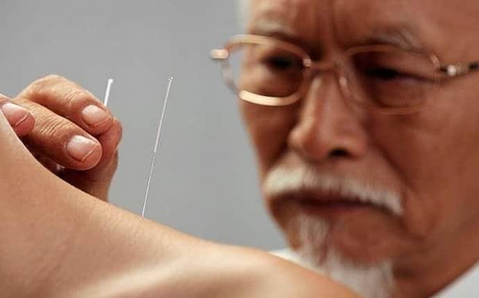 Для чего проводится иглоукалывание при неврите лицевого нерва, польза процедуры.