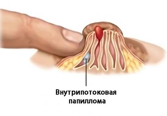 Кровь из соска причины появления, диагностика и лечение