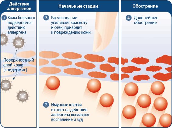 Атопический дерматит – симптомы, причины возникновения, лечение