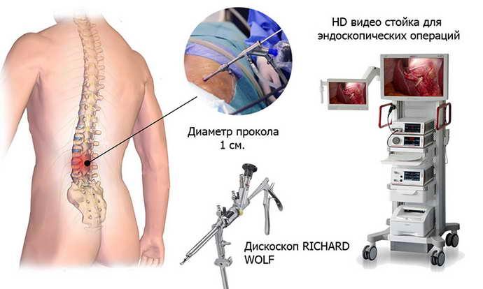 лечение грыжи позвоночника лазером как происходит