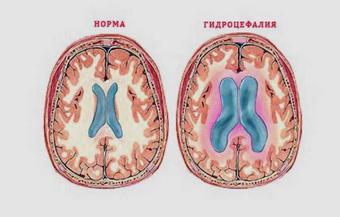Причины гидроцефалии