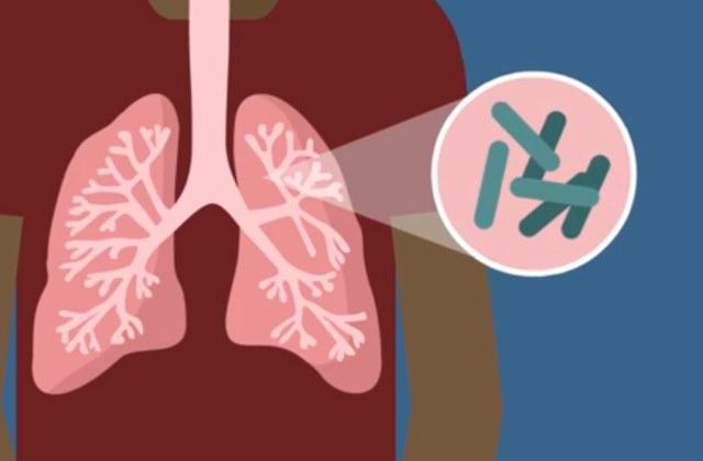 Активная форма туберкулеза