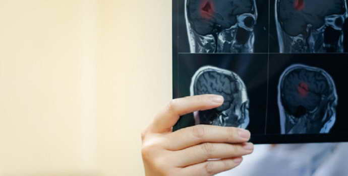 Краниофарингиома головного мозга: особенности лечения, прогнозы