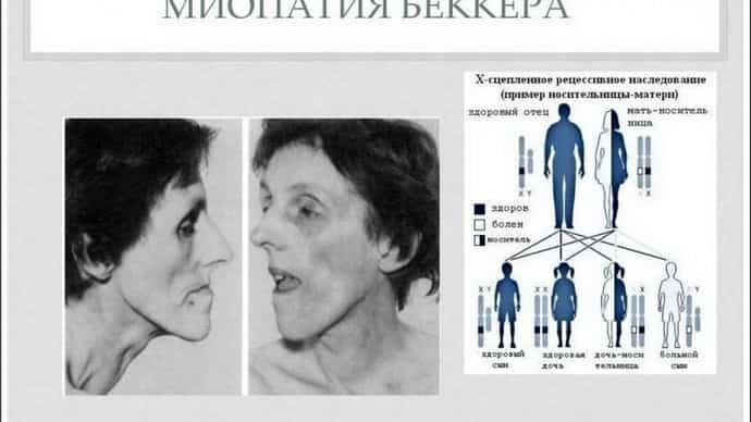 Как возникает миопатия эрба