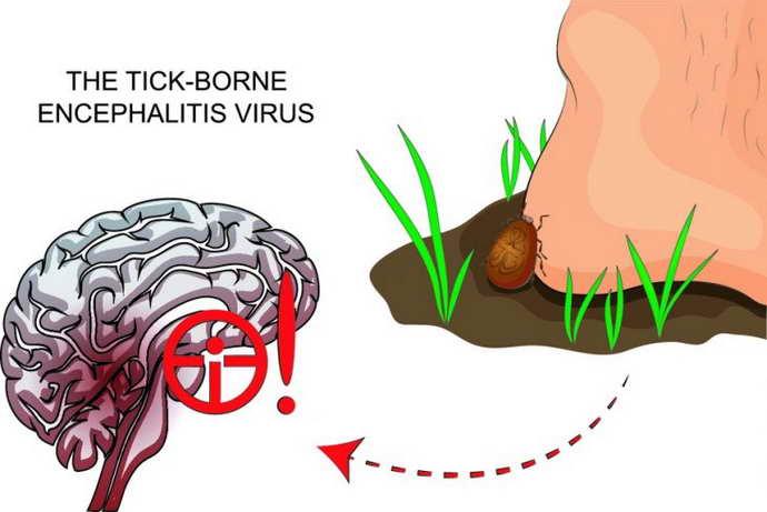 энцефалит симптомы у детей