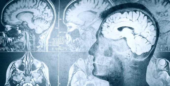 Отек головного мозга: причины, основные симптомы и способы лечения
