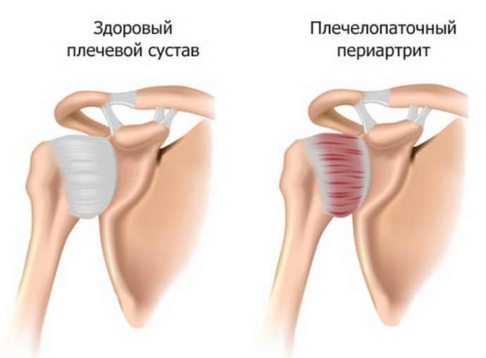 Плечелопаточный периартрит: характеристика, симптомы и лечение