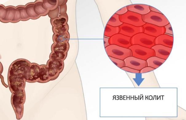 Кровь из попы (ануса) причины и лечение