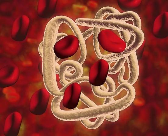 Как быстро поднять гемоглобин в домашних условиях?