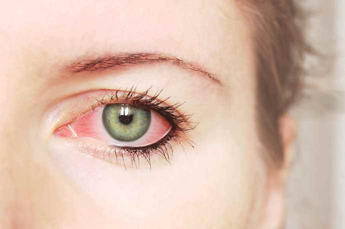 Прозопалгия левосторонняя и ее симптоматика