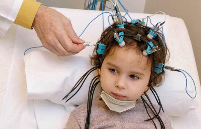 этапы ээг головного мозга ребенку