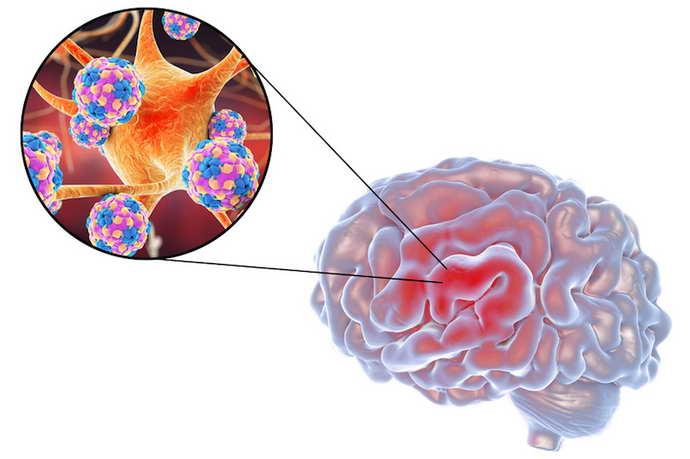 Самая распространенная классификация энцефалитов головного мозга