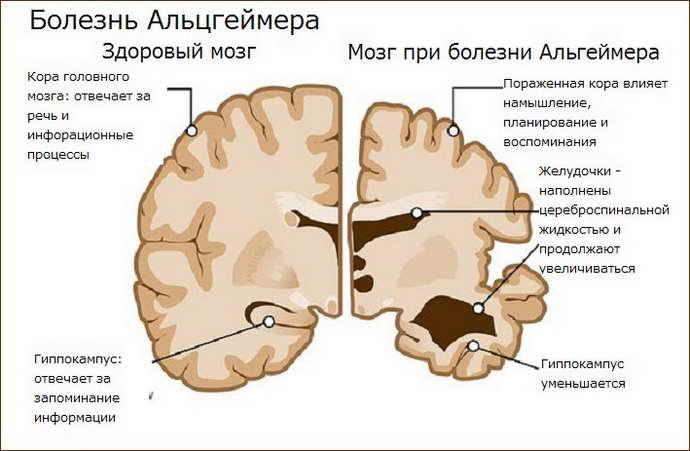Терапия Альцгеймера