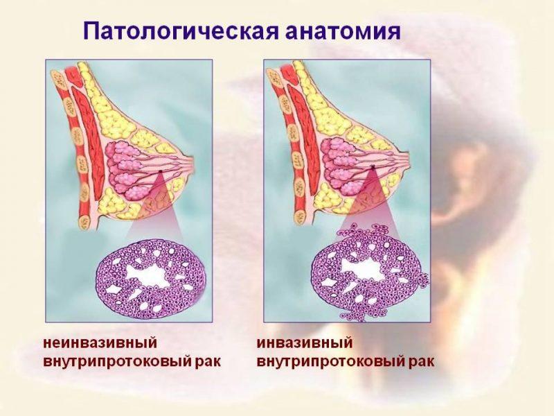 Внутрипротоковый рак