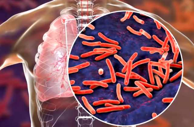 Инфекционное заболевание туберкулез в легких