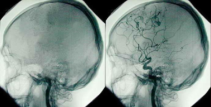 Как проверить сосуды головного мозга: современные терапевтические методики