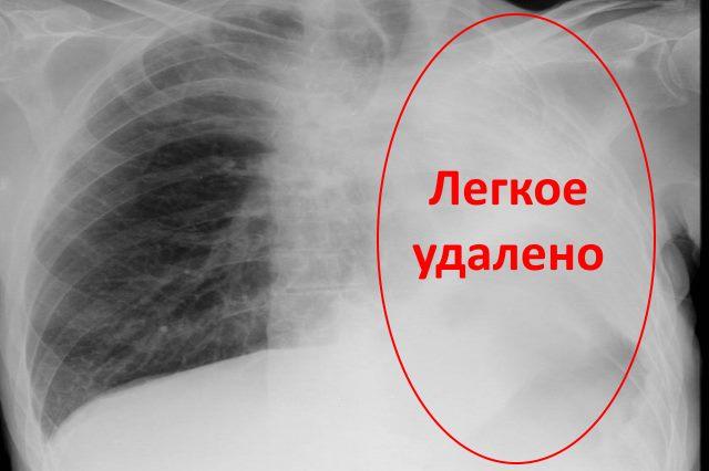 Операции на бронхах при туберкулезе thumbnail