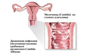 молочница (кандидоз)