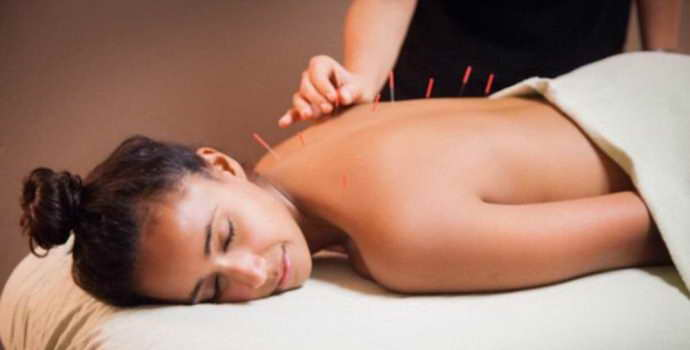 Польза и вред иглоукалывания при остеохондрозе