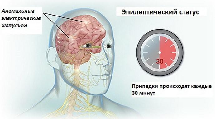 Что такое эпилептический статус при судорожном синдроме