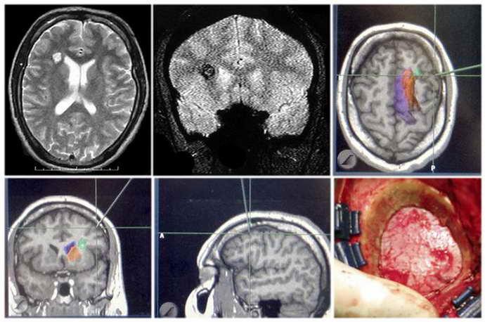 ангиома головного мозга виды