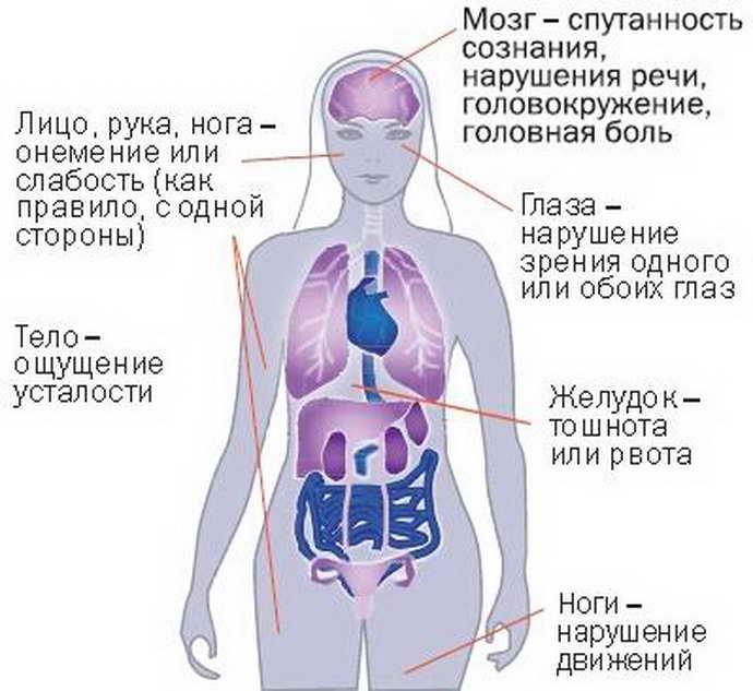 основные симптомы нарушения мозгового кровообращения