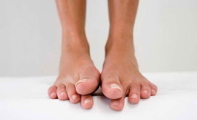 Немеет нога при остеохондрозе