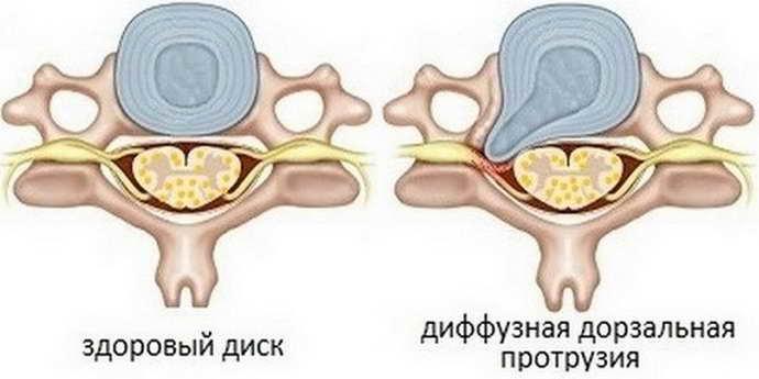остеохондроз с корешковым синдромом причины развития
