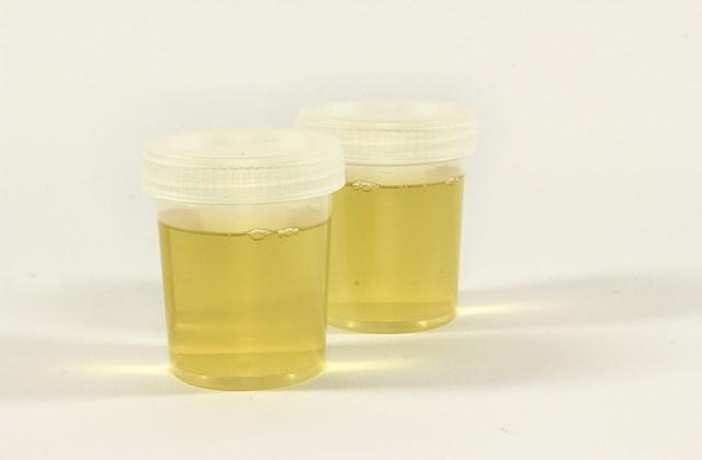 Урина на бактериоскопический анализ