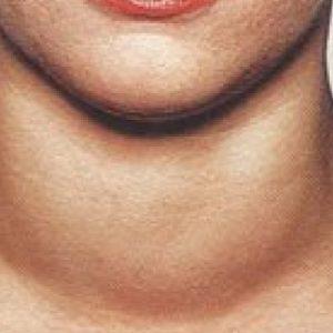 Гиперплазия щитовидной железы