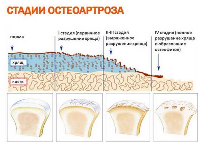 основные степени остеохондроза