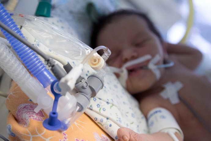 отек мозга у новорожденного лечение