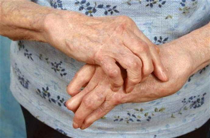 мультифокальная прогрессирующая лейкоэнцефалопатия поздняя симптоматика