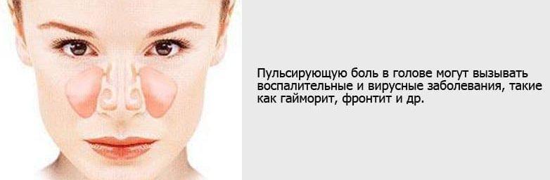 Пульсирующая боль в голове из-за гайморита