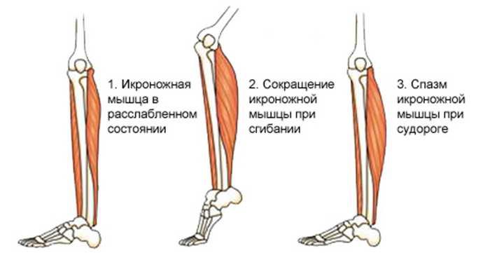 основные причины появления судорог в ногах