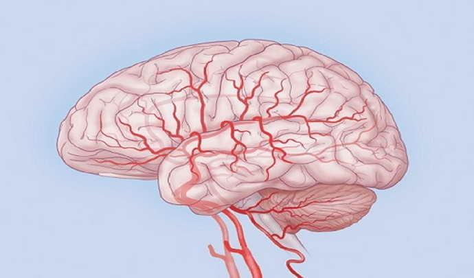 кому нужны капельницы для улучшения мозгового кровообращения
