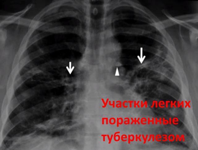 Участки легких пораженные туберкулезом