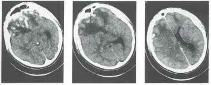 аноксическое поражение головного мозга почему появляется